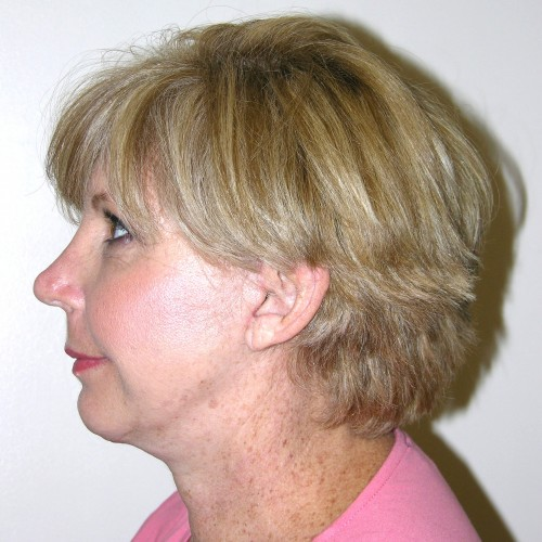 Facelift 18 After Photo