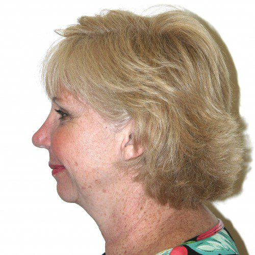 Facelift 18 Before Photo