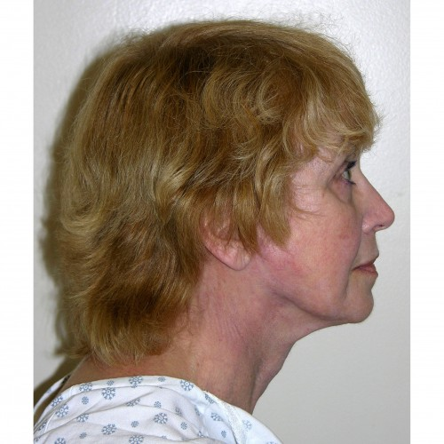 Facelift 08 After Photo
