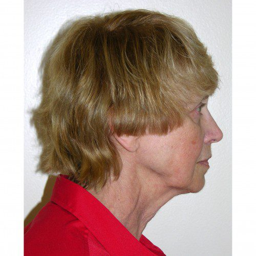 Facelift 08 Before Photo