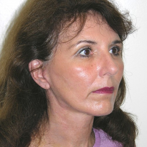 Facelift 19 After Photo