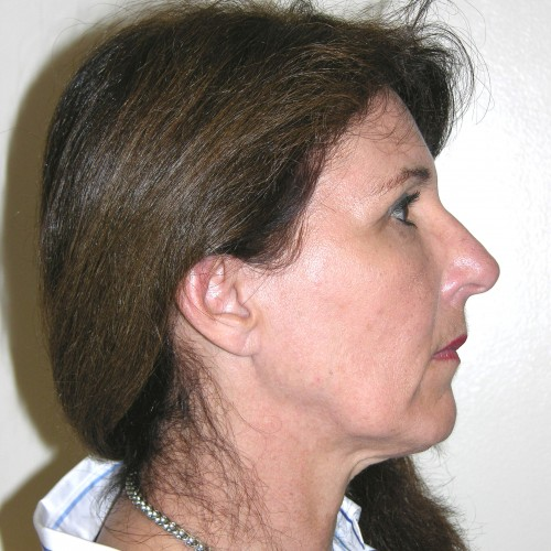 Facelift 19 Before Photo