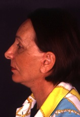 Facelift 10 After Photo