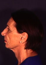Facelift 10 Before Photo
