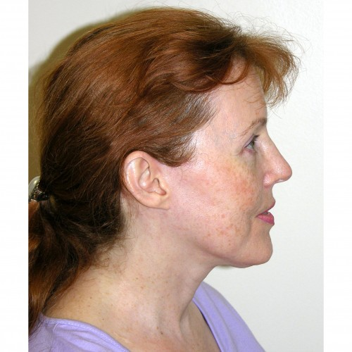 Facelift 11 After Photo