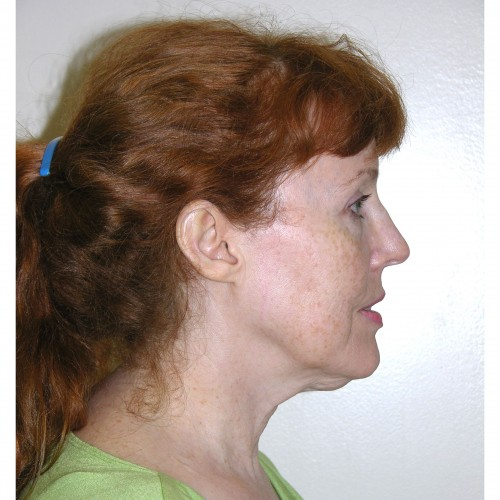 Facelift 11 Before Photo