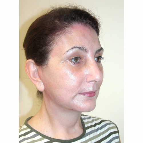 Facelift 12 After Photo