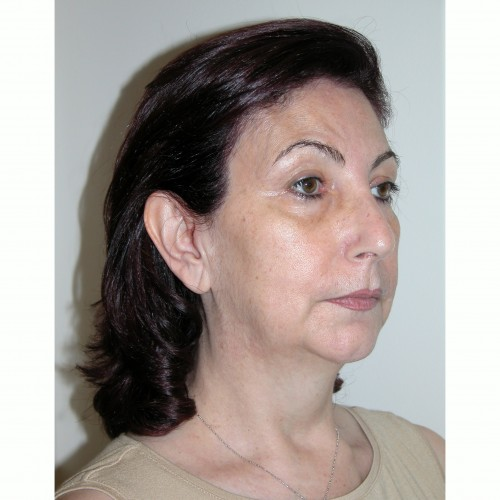 Facelift 12 Before Photo