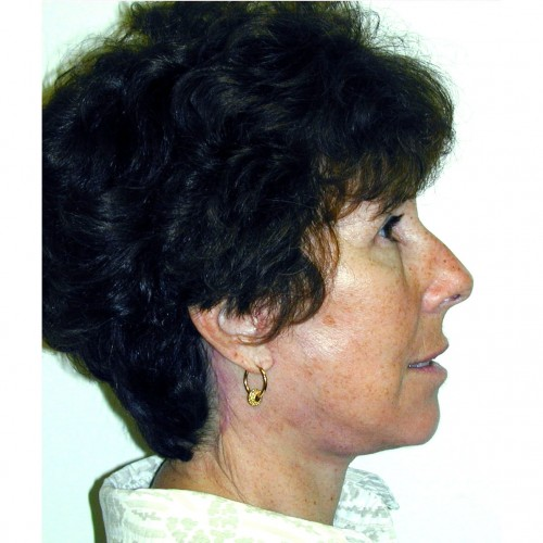 Facelift 13 After Photo