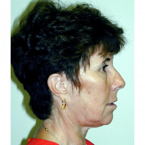 Facelift 13 Before Photo