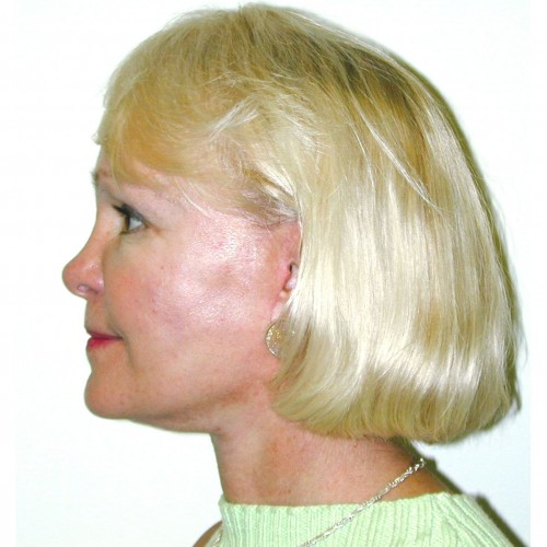 Facelift 14 After Photo