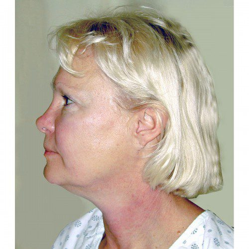 Facelift 14 Before Photo