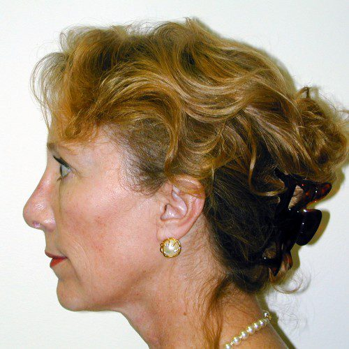 Facelift 05 Before Photo