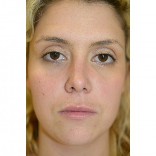 Fillers 2 After Photo
