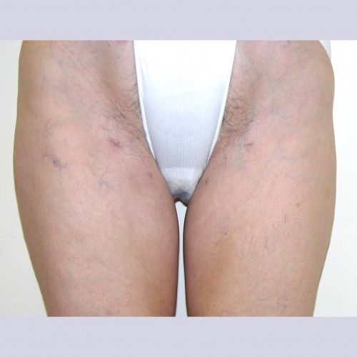 Liposuction 1 After Photo