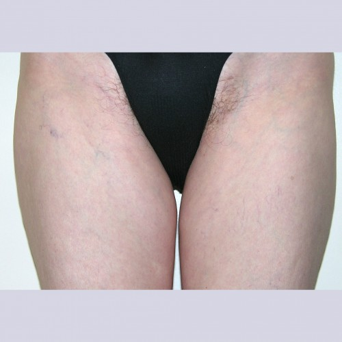 Liposuction 1 Before Photo