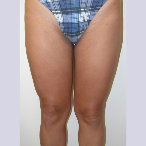 Liposuction 4 After Photo