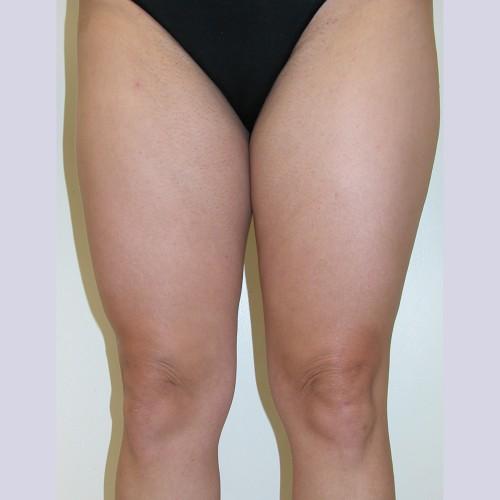 Liposuction 4 Before Photo