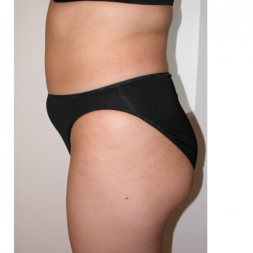 Liposuction 4 Before Photo