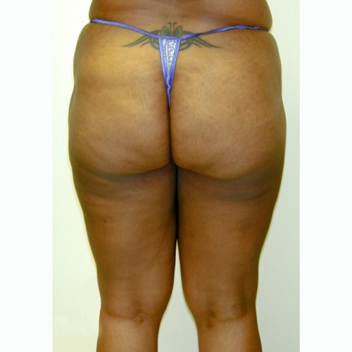 Liposuction 5 After Photo