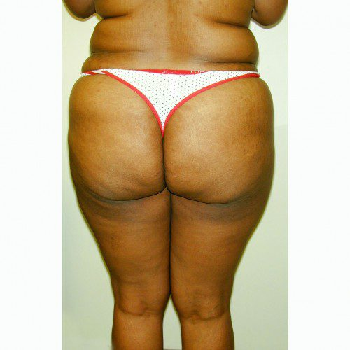 Liposuction 5 Before Photo