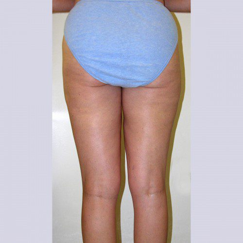 Liposuction 6 After Photo
