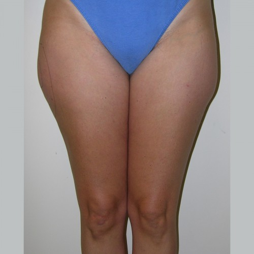 Liposuction 6 Before Photo