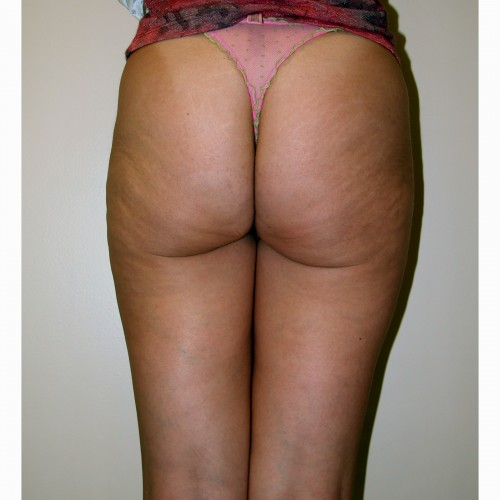 Liposuction 7 After Photo