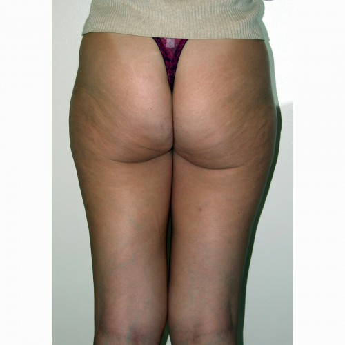 Liposuction 7 Before Photo