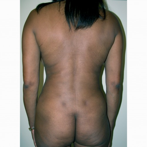 Liposuction 8 After Photo