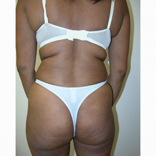 Liposuction 8 Before Photo
