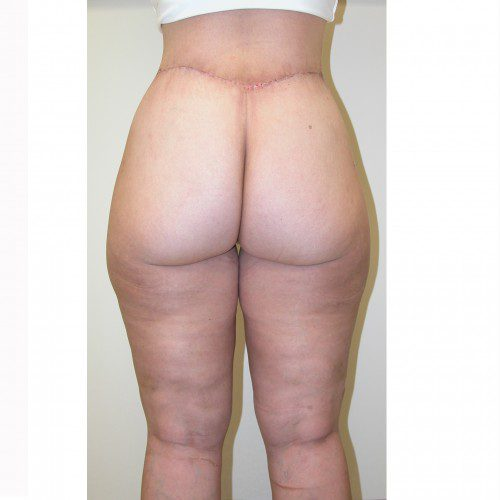 Liposuction 10 After Photo