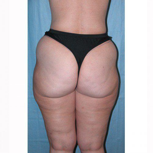 Liposuction 10 Before Photo