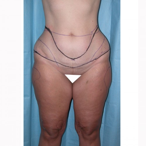 Liposuction 10 Before Photo