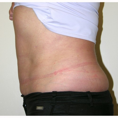 Liposuction 11 After Photo