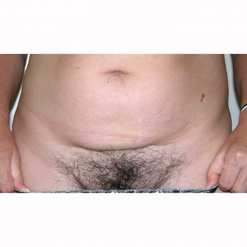 Liposuction 11 Before Photo