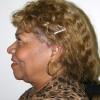Liposuction 14 Before Photo Thumbnail