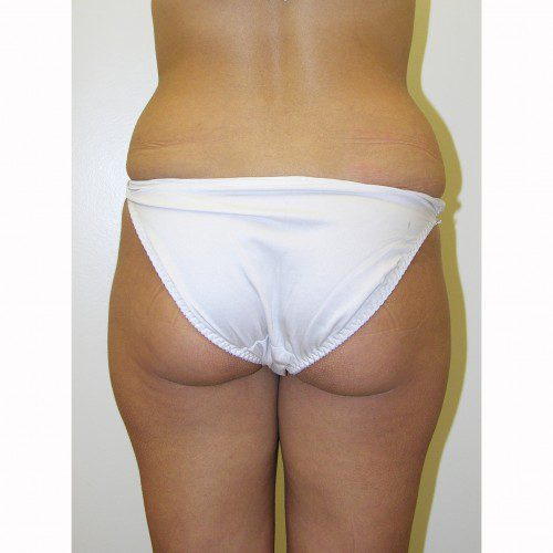 Liposuction 15 Before Photo