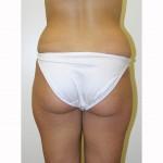 Liposuction 15 Before Photo - 9