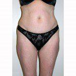 Liposuction 16 Before Photo - 8