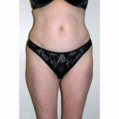 Liposuction 16 Before Photo