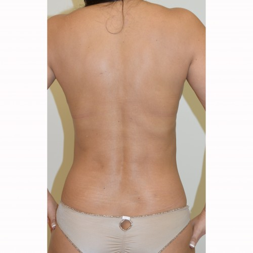 Liposuction 17 After Photo