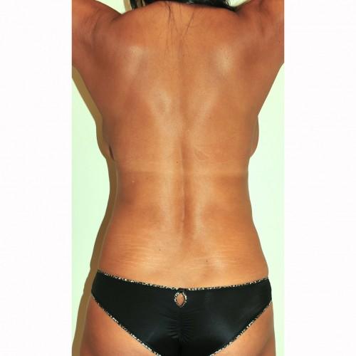 Liposuction 17 Before Photo