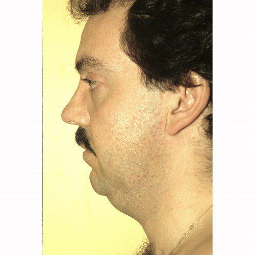Liposuction 19 Before Photo