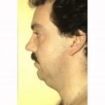 Liposuction 19 Before Photo - 5