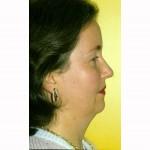 Liposuction 20 Before Photo - 4