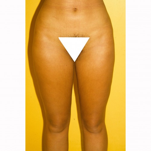 Liposuction 9 After Photo