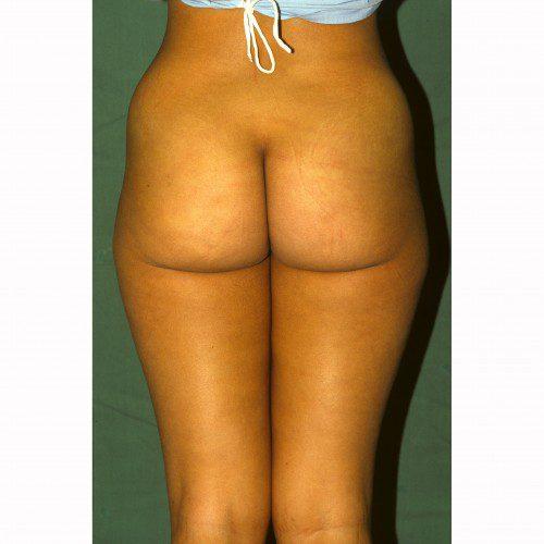 Liposuction 9 Before Photo