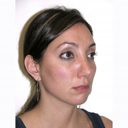 Rhinoplasty 1 After Photo