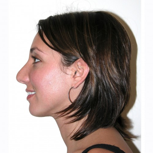 Rhinoplasty 1 Before Photo